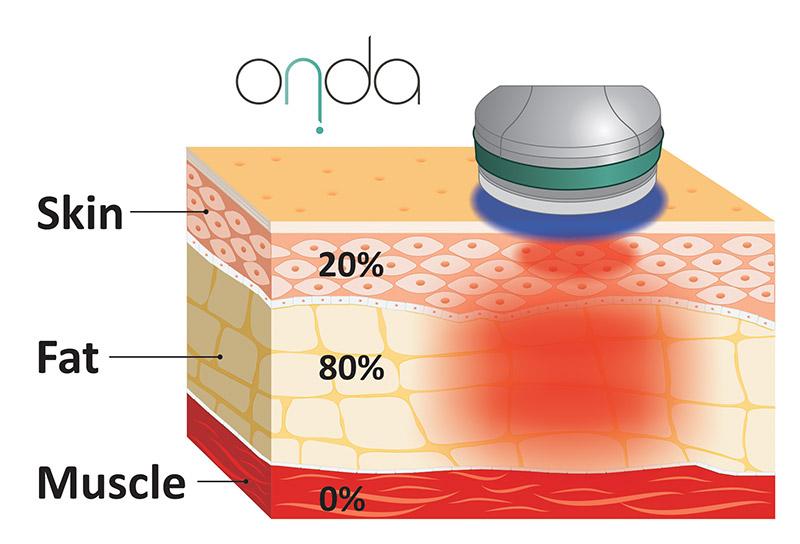 Manipolo-ONDA-sul-tessuto